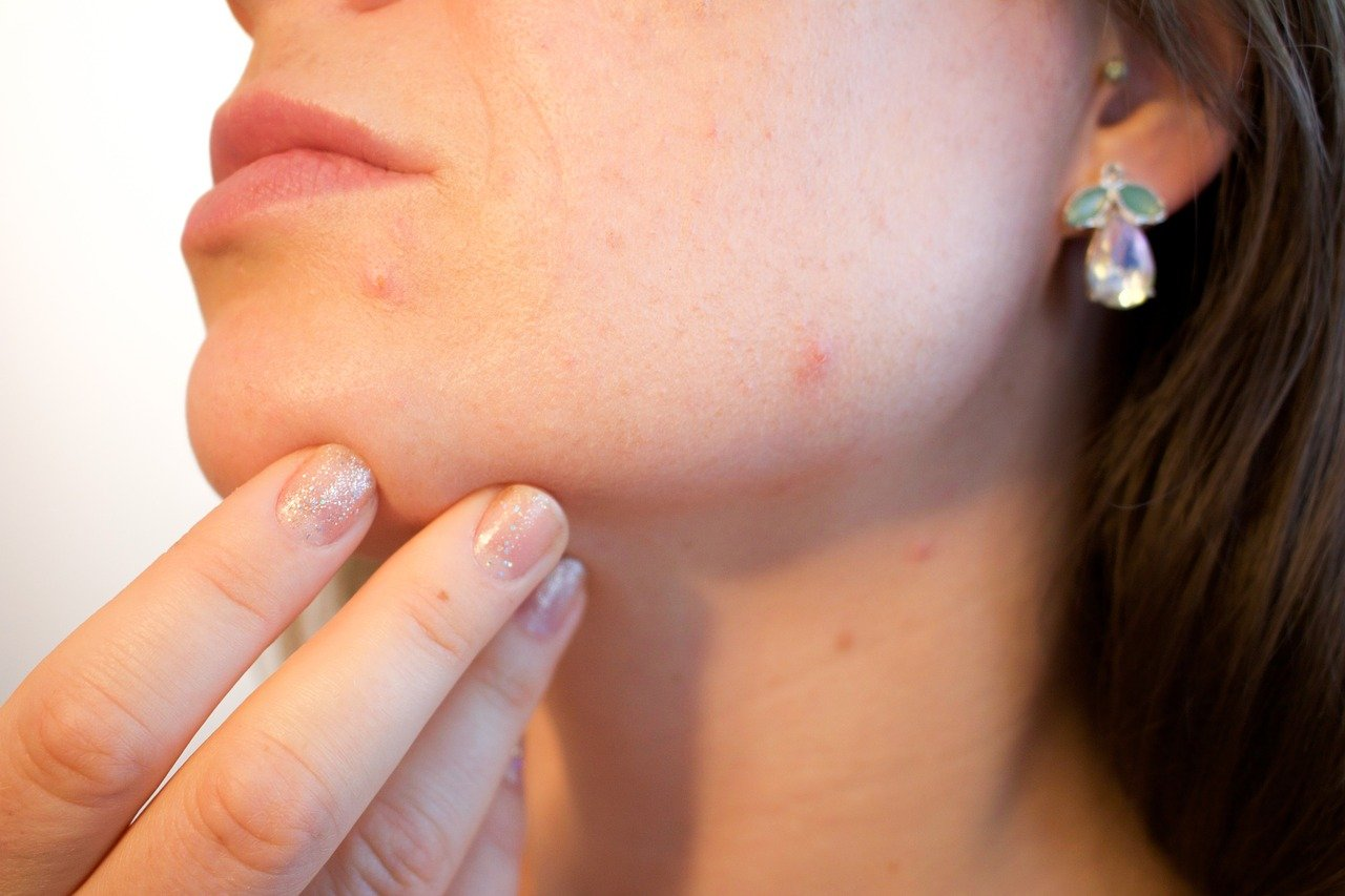 Acne Skin Care Products and Treatments