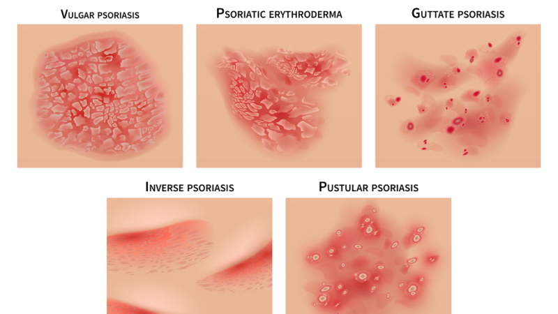 The Condition of Psoriasis